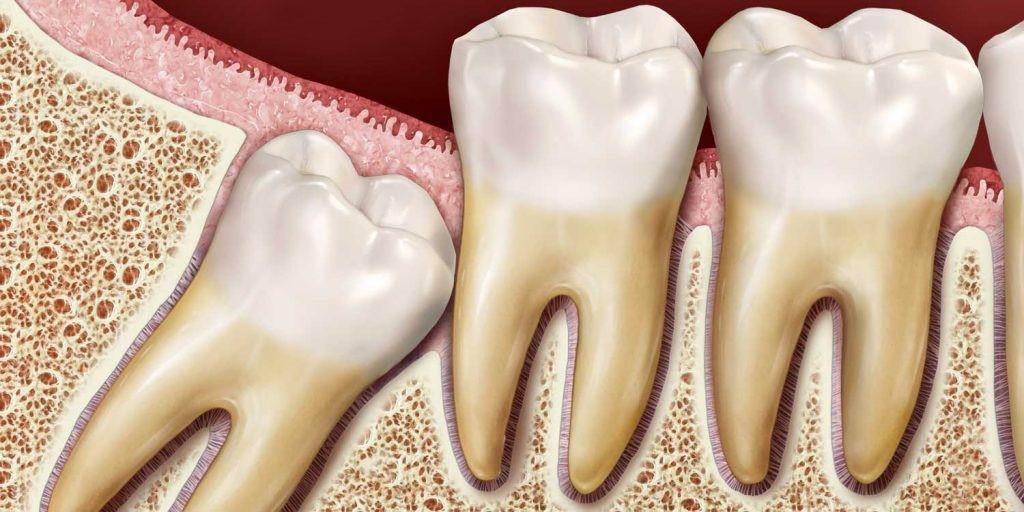 دندان عقل چیست انواع دندان عقل و مراقبت های بعد از کشیدن دندان عقل ایمپلنت دندان متخصص ایمپلنت کامپوزیت دندان بلیچینگ دندان ارتودنسی دندان لمینت دندان کلینیک دندانپزشکی مبین