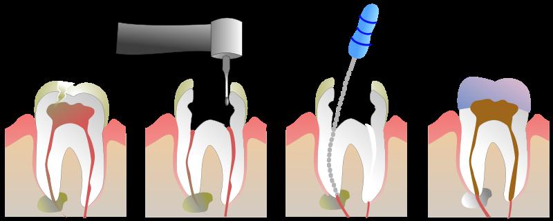 درمان ریشه دندان یا عصب کشی دندان